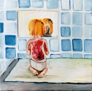Dit schilderij van Wendela de Beaufort, zelf als kind brandwondenslachtoffer, verbeeldt de lichamelijke én psychische gevolgen van littekens.