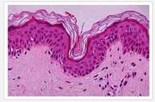 gezonde huid onder de microscoop_© dermotografie.nl